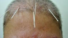 Agulhas de acupuntura aplicadas na cabeça.